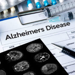 New clinical trial for Alzheimer's disease treatment begins in UK