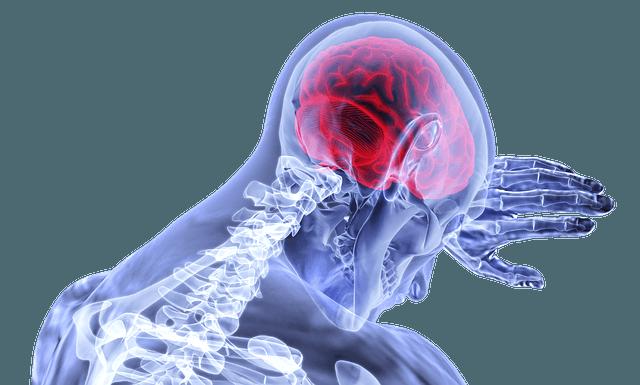 braincandid