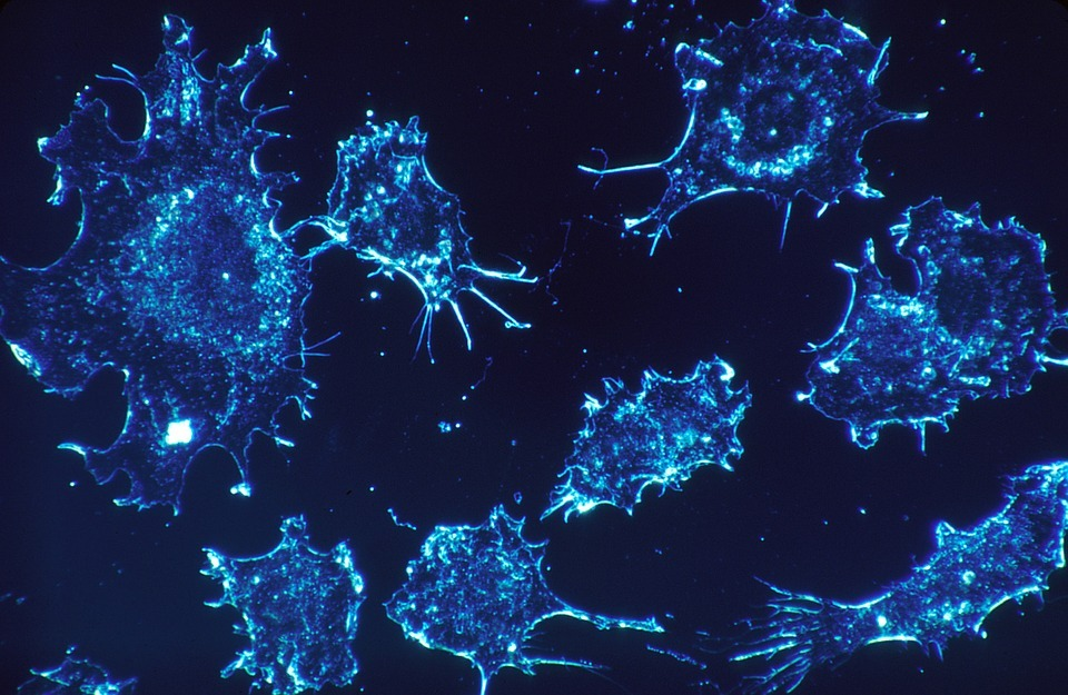 Celgene's QUAZAR AML-001 trial of CC-486 meets primary and key secondary endpoints