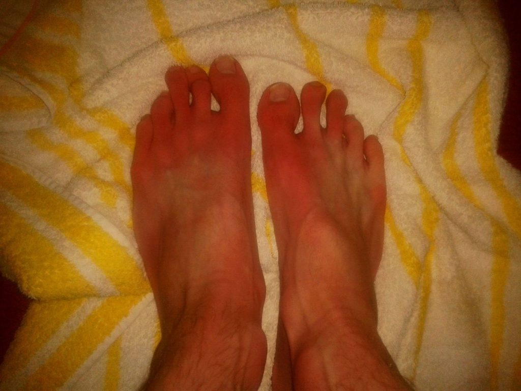 1200px-Erythromelalgia-symptoms