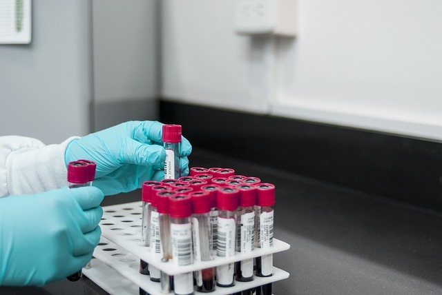 Arena doses first subject in ELEVATE UC 12 phase 3 trial of Etrasimod in ulcerative colitis