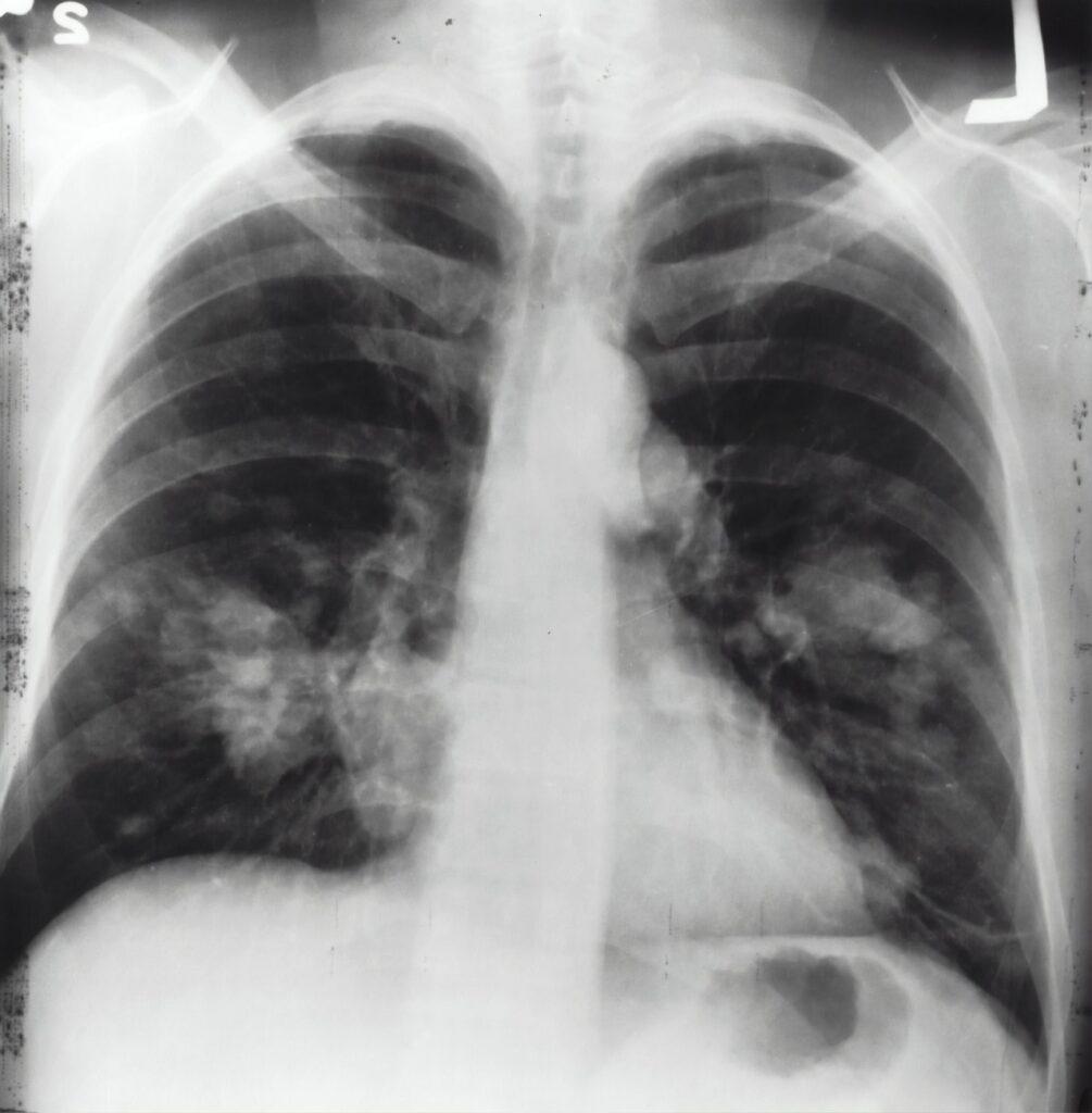 national-cancer-institute-59pGROkKJPE-unsplash